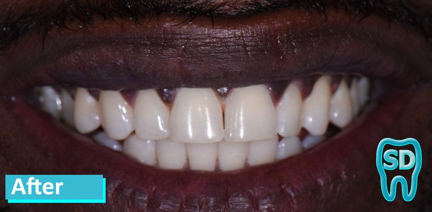 Sky Dental Zoom Whitening NYC